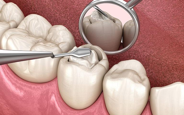 trám răng có chích thuốc tê không