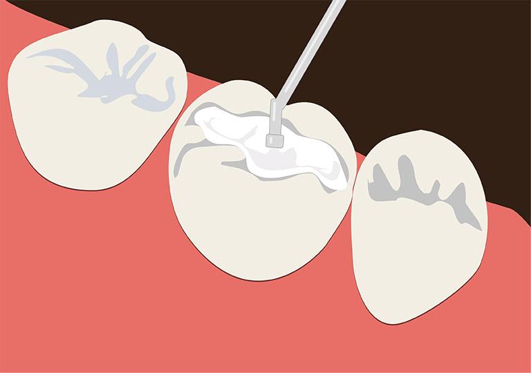 trám răng là như thế nào