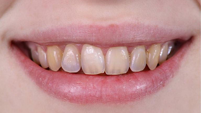 hàn răng là như thế nào