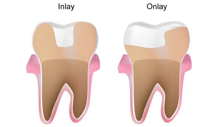 phương pháp trám răng