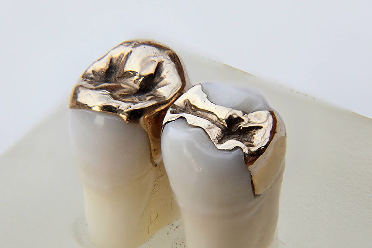 Trám răng Inlay Onlay giá bao nhiêu