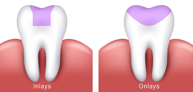 trám răng inlay onlay là gì