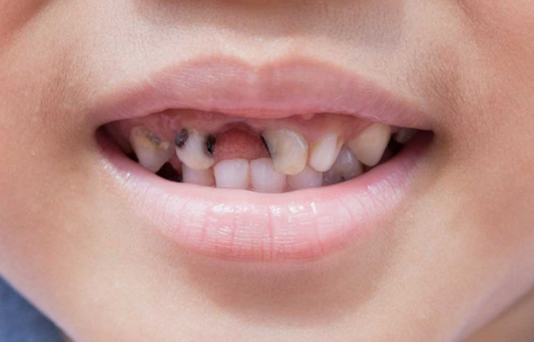 trẻ bị đau răng phải làm sao