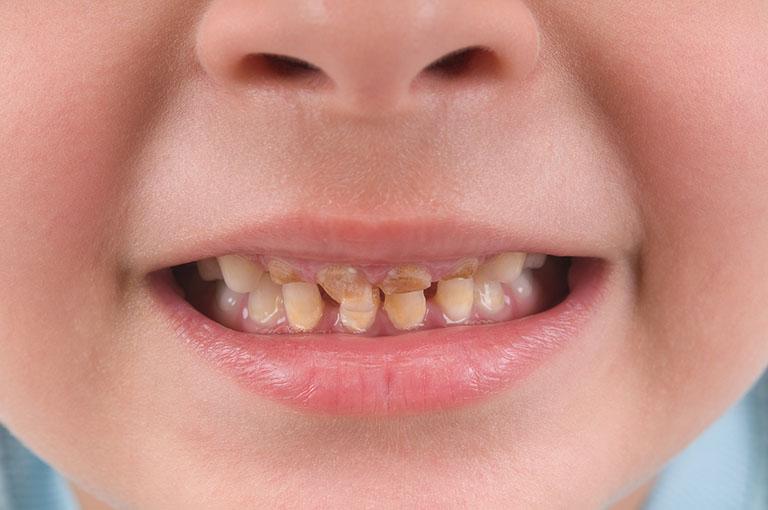 trẻ bị sún răng viêm lợi