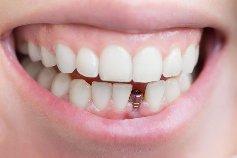 trồng răng giả bị đau
