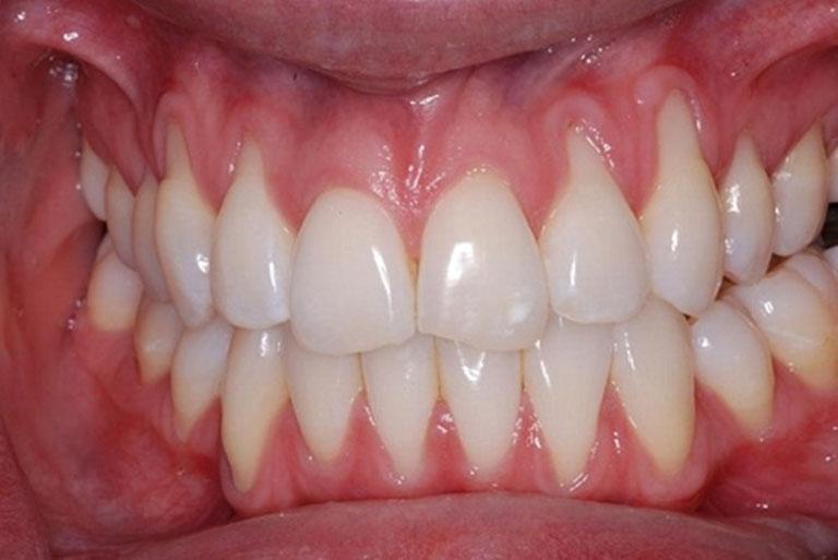 tụt lợi chân răng có chữa được không