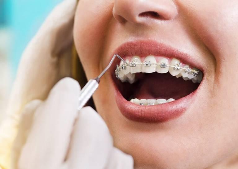 Bị tụt lợi có niềng răng được không?