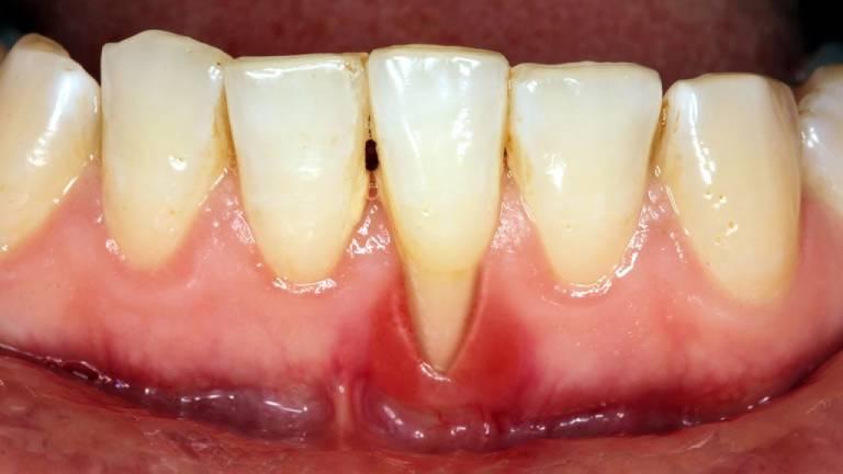 Những trường hợp chống chỉ định niềng răng