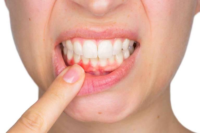 Niềng răng khi bị tụt lợi chân răng cần lưu ý gì?