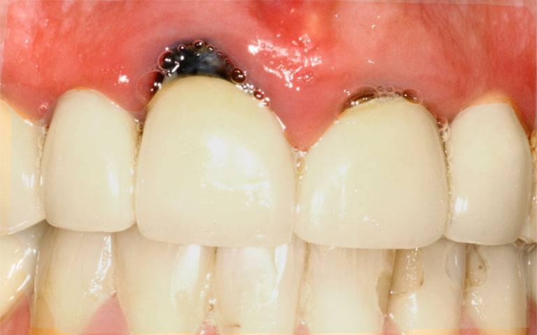 Nguyên nhân gây viêm lợi sau khi bọc răng sứ