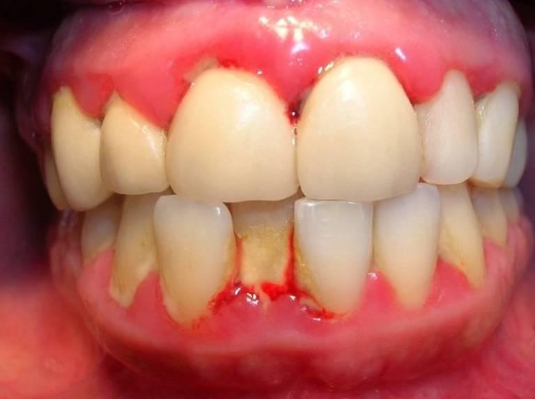 Bị viêm lợi sau khi bọc răng sứ nguy hiểm không?