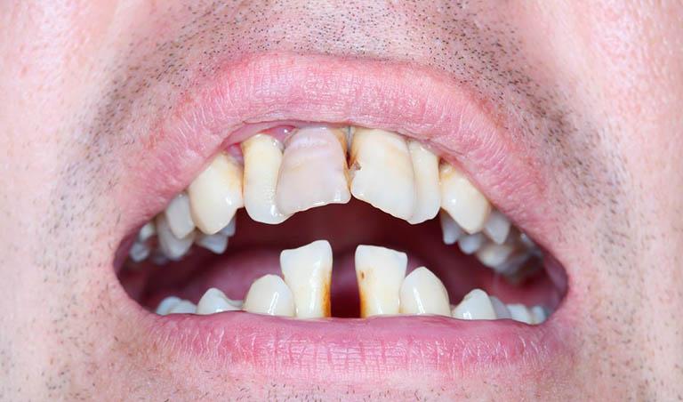 viêm nha chu có phải nhổ răng