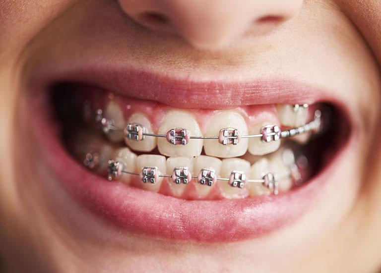 bị hô hàm có niềng răng được không
