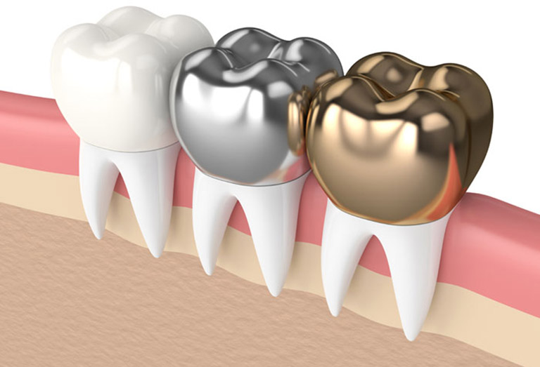 bọc răng sứ giá bao nhiêu 1 chiếc