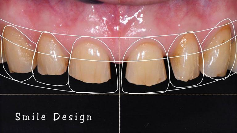 bọc răng sứ nano 5s là gì