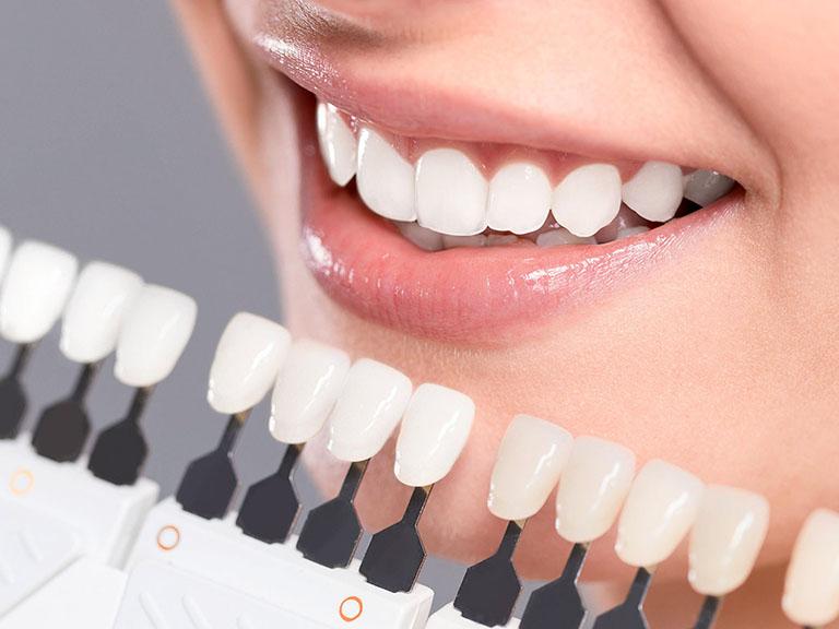 bọc răng sứ Nano 5S