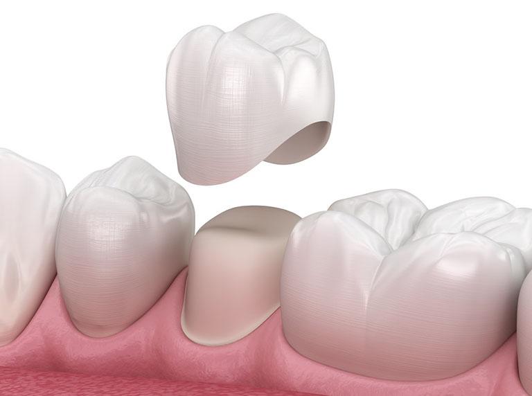 Bọc răng sứ thẩm mỹ có đau không
