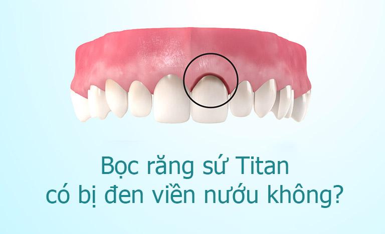 Bọc răng sứ Titan có bị đen không