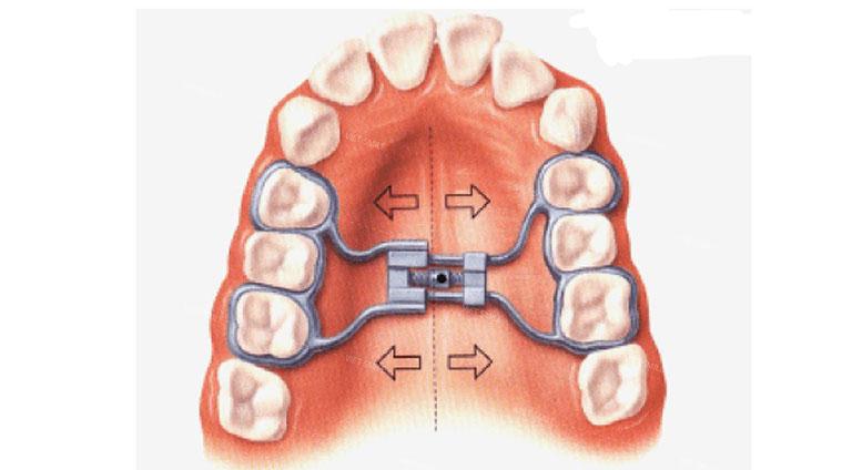 khí cụ niềng răng