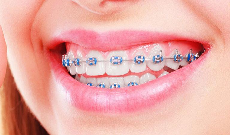 các loại mắc cài niềng răng