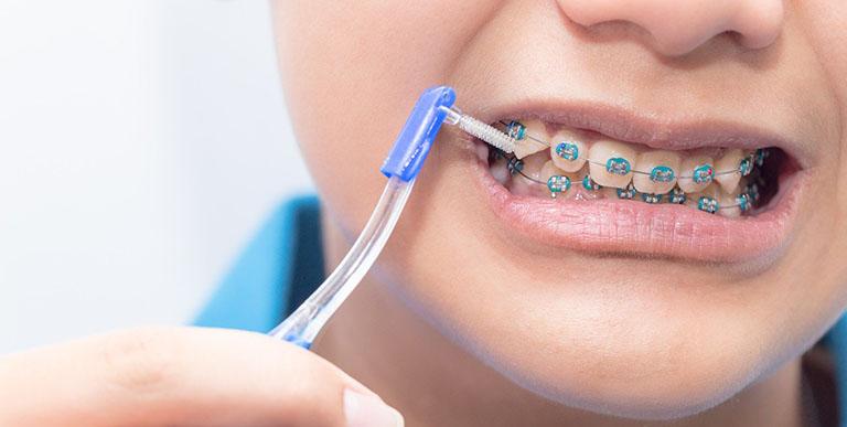 Hướng dẫn vệ sinh răng miệng khi mang mắc cài