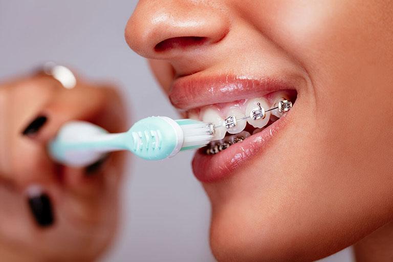 cách chăm sóc răng miệng khi niềng răng