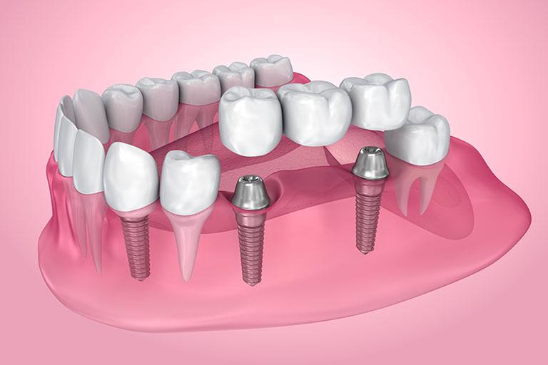 các loại cầu răng sứ