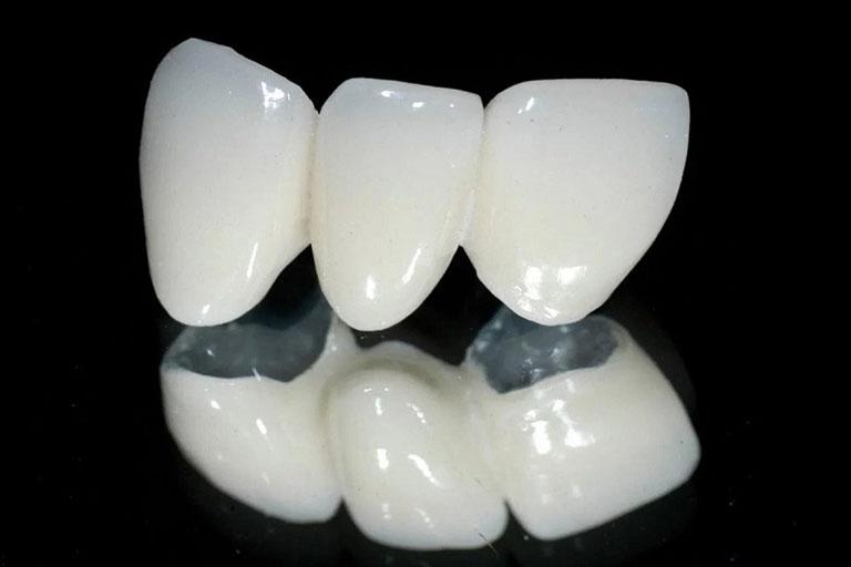 Giá làm cầu răng sứ