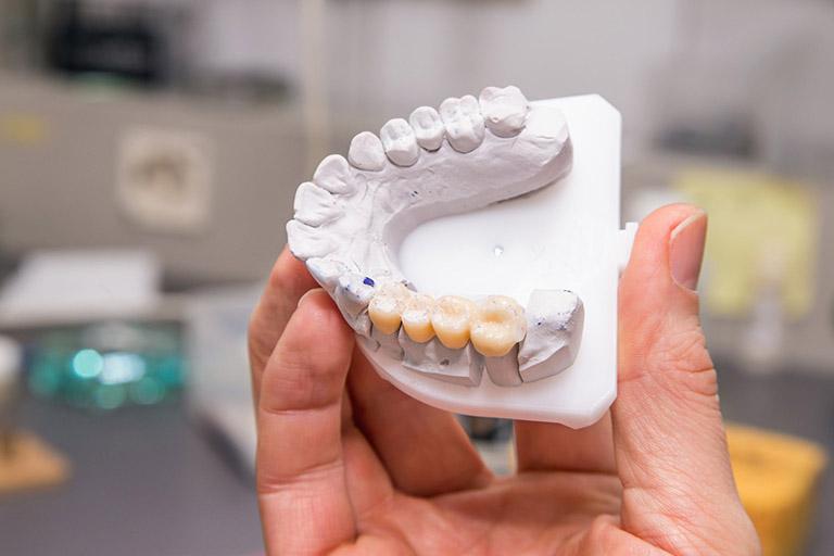 ưu nhược điểm của làm cầu răng
