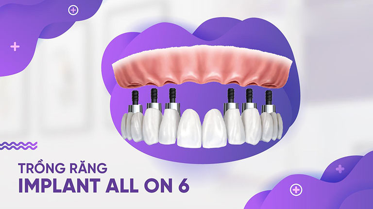 trồng răng implant all on 6