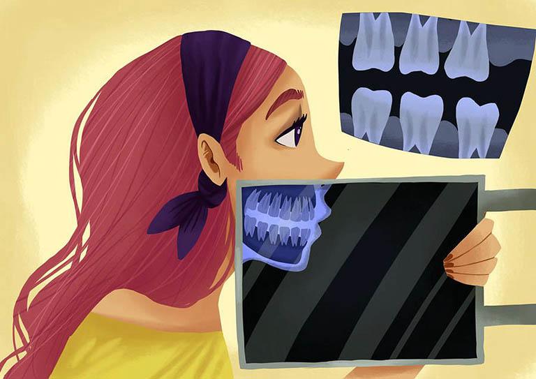 Chụp x quang răng có hại gì không