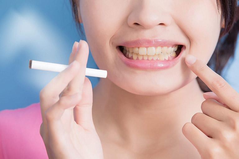 Có nên bọc răng sứ không