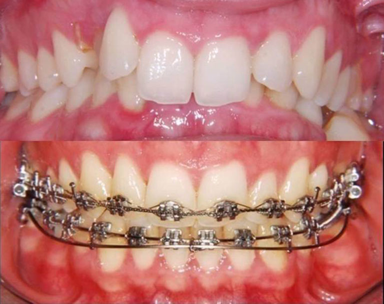 đánh lún răng để làm gì