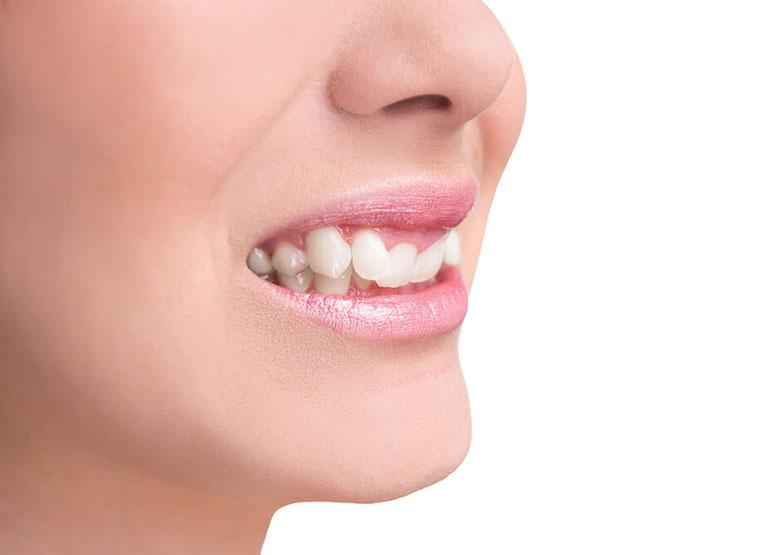 Các phương pháp đánh lún răng