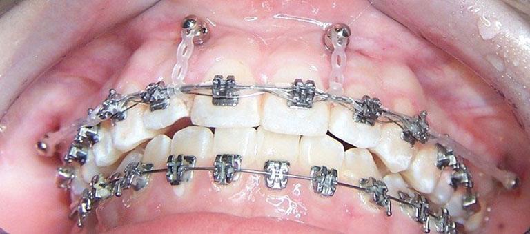 Đánh lún răng