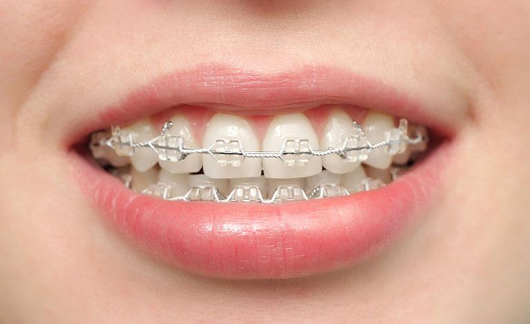 những dấu hiệu khi mới niềng răng