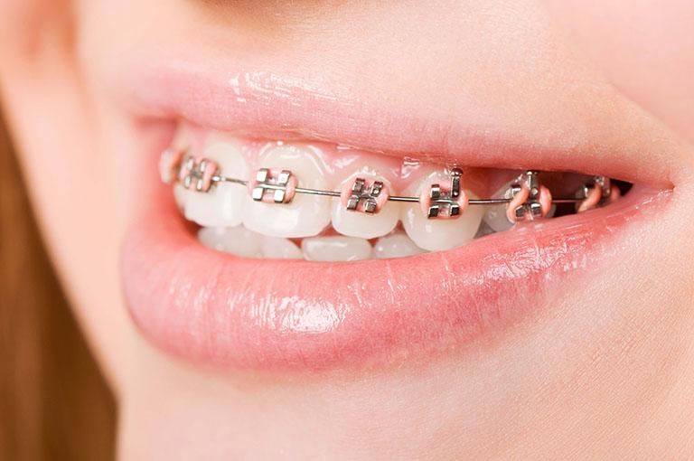dây thun niềng răng có tác dụng gì