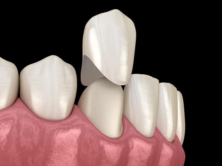 bọc răng sứ ở đâu tốt nhất hà nội