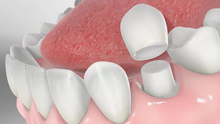 bọc răng sứ ở đâu uy tín tại tphcm