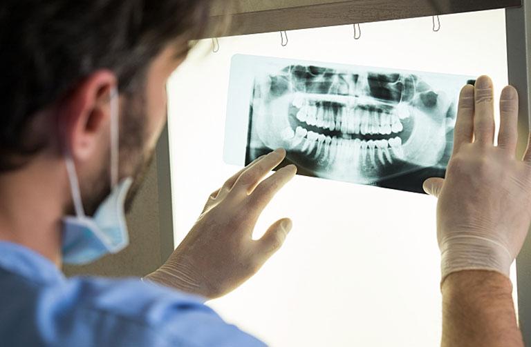 địa chỉ chụp x quang răng ở hà nội