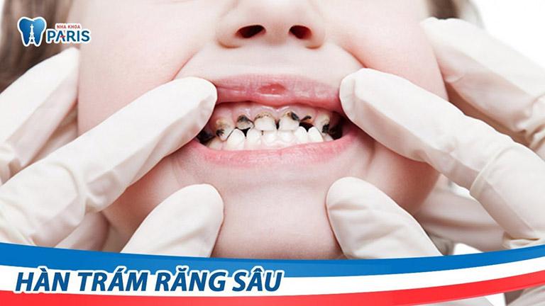 chữa sâu răng tại hà nội
