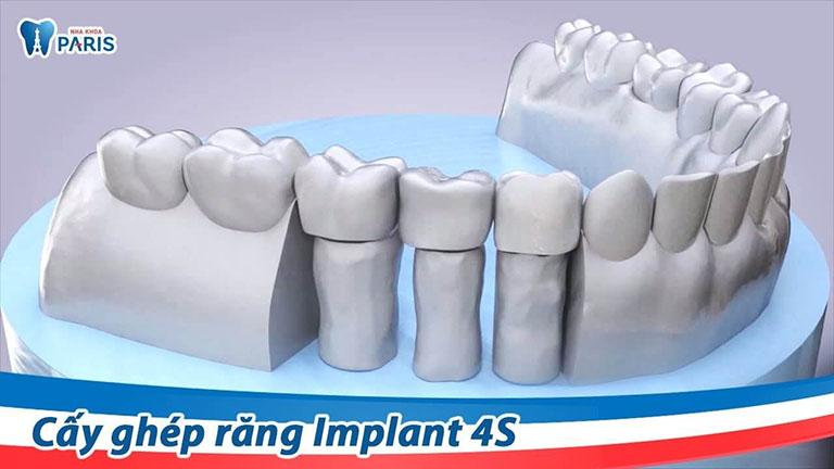 trồng răng implant ở đâu tốt tại hà nội