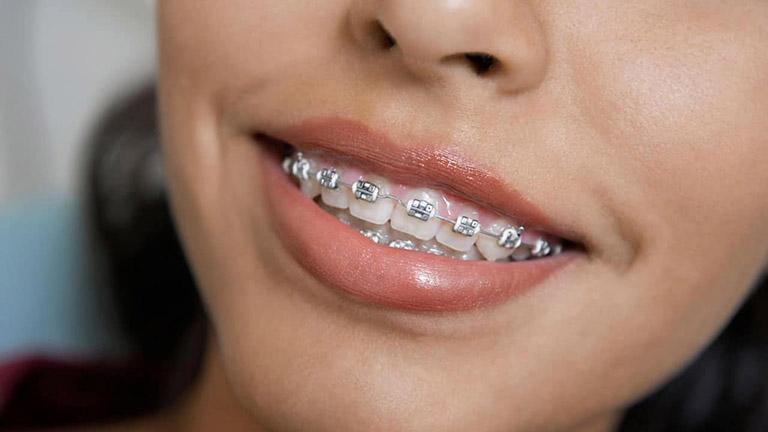 Đối tượng nào nên chọn niềng răng mắc cài kim loại