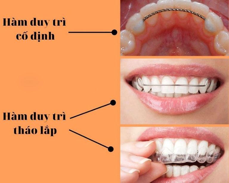 Hàm duy trì sau niềng răng có mấy loại