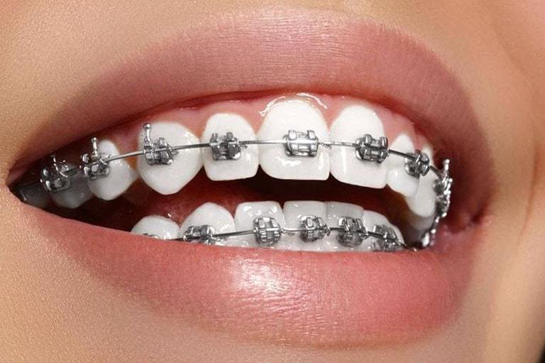 niềng răng hô giá bao nhiêu