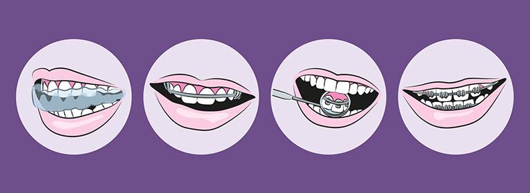 niềng răng nào rẻ nhất