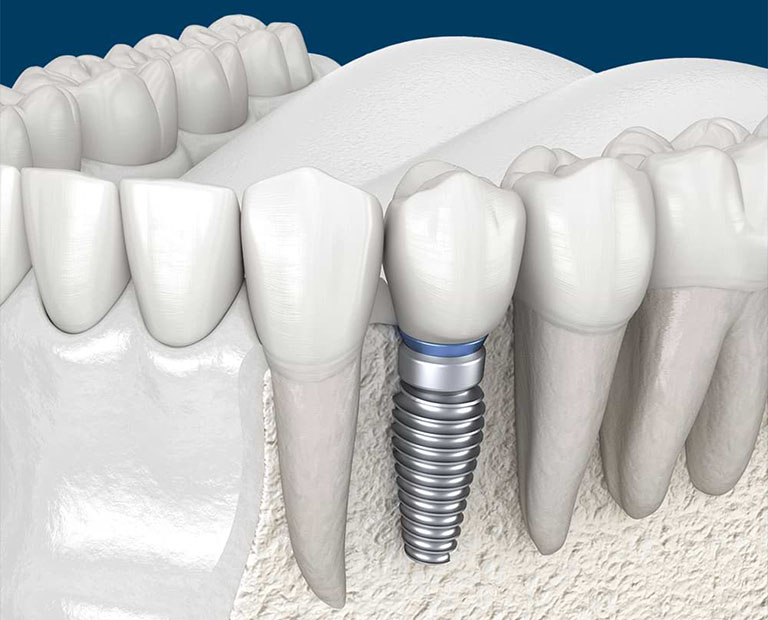 những lưu ý sau khi trồng răng implant