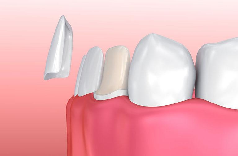 lưu ý trước khi bọc răng sứ