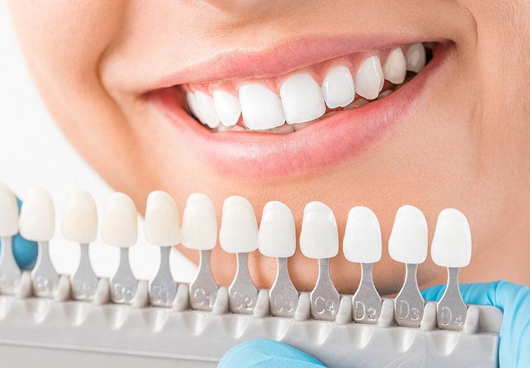 lưu ý sau bọc răng sứ