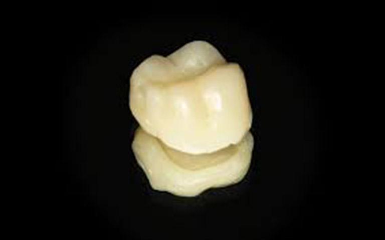 các loại mão răng